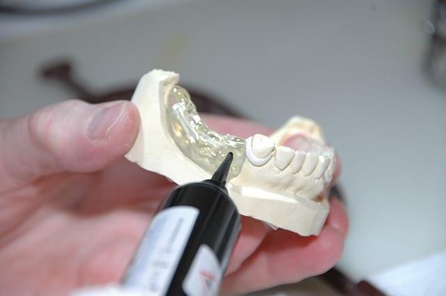 Zahnlücke füllen